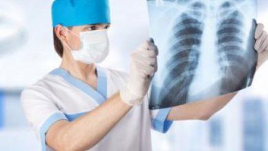 Photo of У липні виявили понад 1,5 тисячі випадків туберкульозу