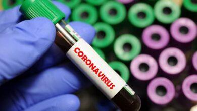 Photo of МОЗ і Офіс президента не можуть порозумітися щодо проведення експрес-тестів на коронавірус
