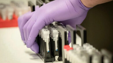 Photo of Центр громадського здоров'я отримав перші тест-системи для коронавірусу