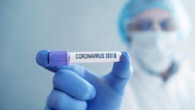 Photo of На Сумщині вперше зафіксували коронавірус