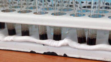 Photo of У Кривому Розі виявили перший випадок коронавірусу