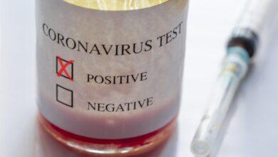 Photo of В Україні зафіксували вже 156 випадків коронавірусу