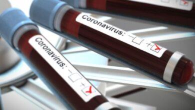 Photo of Скільки тестів на коронавірус можуть за добу провести в Україні: відповідь МОЗ
