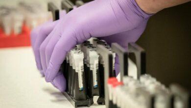 Photo of В Україні кількість хворих на коронавірус сягнула 73 осіб