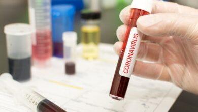 Photo of У Сумській області померла хвора на коронавірус жінка