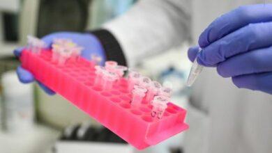 Photo of В Івано-Франківську експрес-тести підтвердили коронавірус у 57 осіб