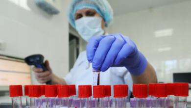 Photo of Близько 25% результатів ПЛР-тестів можуть бути хибними, – Степанов