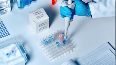 Photo of На підприємстві Київхліб виявили спалах коронавірусу