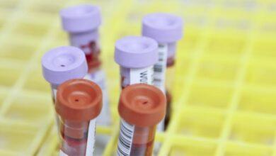 """Photo of Вчені створили """"мембрану на чипі"""", яка допоможе знайти вакцину від Covid-19"""