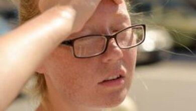 Photo of Сонячний удар: симптоми, перша допомога, профілактика