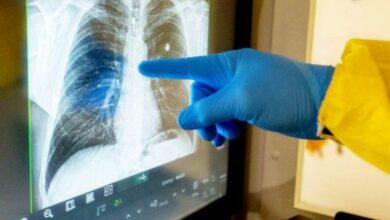 Photo of На Львівщині медики фіксують перші випадки безсимптомного двобічного запалення легень