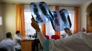 Photo of У серпні в Україні виявили майже тисячу нових випадків туберкульозу