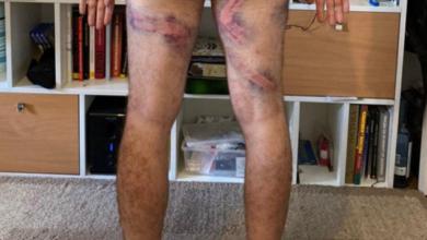 Photo of Засунули в труси бойову гранату і відбігли: затримання в Білорусі очима протестувальника