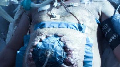 Photo of У Львові хірурги вперше почали лікувати хворих методом «відкритого живота»