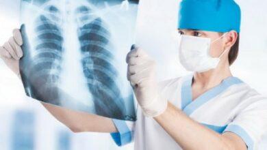 Photo of МОЗ планує втричі збільшити тариф на лікування хворих на туберкульоз