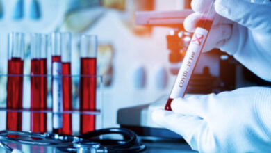Photo of Тести на коронавірус можна буде безкоштовно здавати у приватних лабораторіях