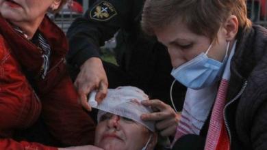 Photo of Міліція жорстко затримує учасників протесту у Мінську – є поранені
