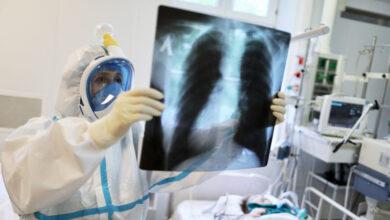 Photo of На Львівщині за добу – 187 хворих коронавірусом, померли 9 людей