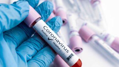 Photo of Позитивний ПЛР-тест на Covid-19 не означає, що людина заразна – Комаровський