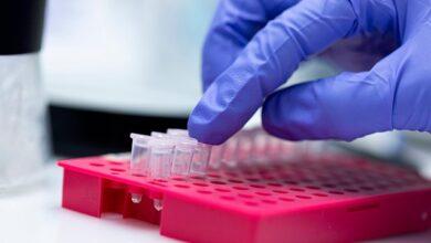 Photo of МОЗ замовив ПЛР-тести для визначення п'яти хвороб