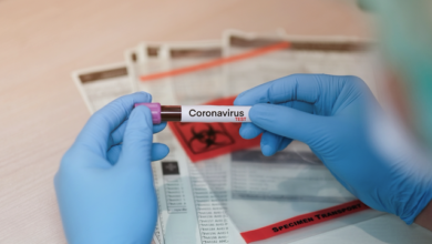 Photo of 90 смертей за добу: в Україні ще 4 348 людей заразилися коронавірусом