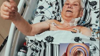 Photo of У лікарні швидкої допомоги Львова 80-річній пацієнтці прооперували серце без жодного розрізу