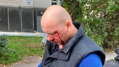 Photo of У центрі Києва побили ветерана АТО, який нещодавно повернувся з полону